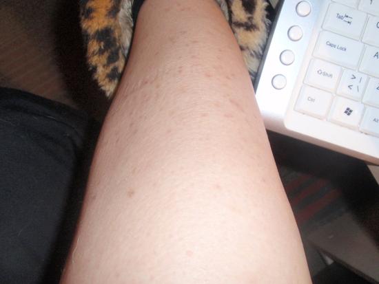 Почему на ногах черные точки